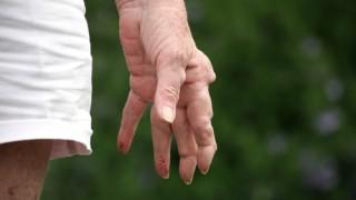 נפרוקסינוד צפוי לגרום לפחות שינויים בלחץ הדם מ-NSAID אחרים בטיפול בחולים שסובלים מארטריטיס ניוונית