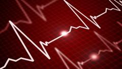 קצב הלב (אילוסטרציה)