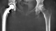 צילום רנטגן של שתל ירך. אילוסטרציה (מקור: ויקיפדיה)