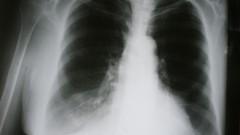 ריאות עם מחלה חסימתית כרונית. צילום רנטגן (אילוסטרציה)