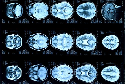 בדיקת MRI - ראש ילד (אילוסטרציה)