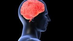 מוח (אילוסטרציה)