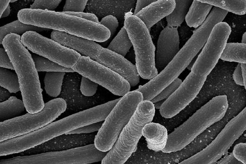 חיידק האי קולי, תרבית (מקור: ויקיפדיה)