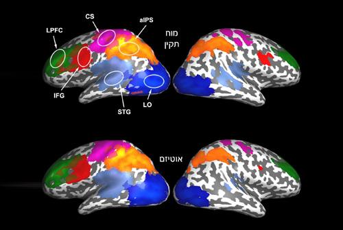 פעילות מוחית בפעוטות (אילוסטרציה: מכון ויצמן)