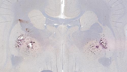 היווצרות פלאקים של ביטא-עמילואידים במוח (אילוסטרציה)