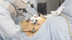 ניתוח מעקף קיבה (אילוסטרציה)