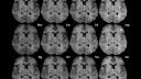 MRI המראה פגיעה של טרשת נפוצה במיאלין -הנקודות הבהירות (מקור: ויקיפדיה)
