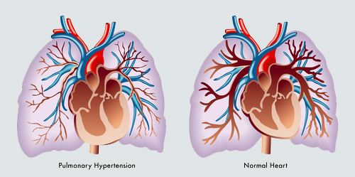 לחץ דם עורקי ריאתי (אילוסטרציה)
