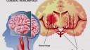 דימום מוחי (אילוסטרציה)