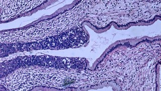 צילום מיקרוסקופי של דגימה היסטולוגית של קרצינומה בצוואר הרחם (מקור: ויקיפדיה)