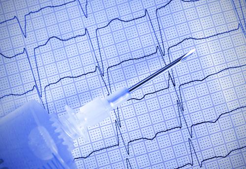הימנעו מביצוע בדיקות א.ק.ג שגרתיות למטופלים בסיכון נמוך ללא תסמינים