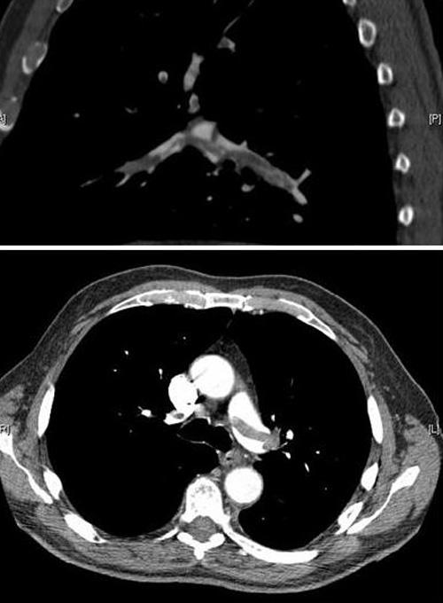 צילום עורקי הריאה בעזרת טומוגרפיה ממוחשבת (CTPA). מקור: ויקיפדיה