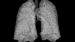 תמונת CT של הריאות (מקור: ויקיפדיה)