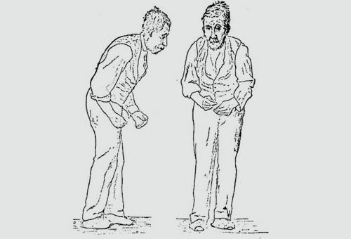 איור של יציבה אופיינית לחולה פרקינסון (מקור: ויקיפדיה)