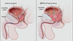 מצב מוגדל של הערמונית (BPH). מקור תמונה: ויקיפדיה.