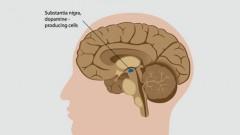 מחלת פרקינסון (אילוסטרציה)