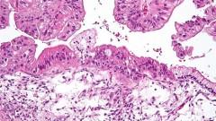 צילום מיקרוסקופי של גידול בשחלה עם פוטנציאל נמוך לממאירות (מקור: ויקיפדיה)