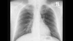 צילום רנטגן רפואי (מקור צילום: ויקיפדיה)