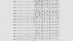 פריקת זיזים וגלים בתדר 3 הרץ בהתקף כללי של אפילפסיה (מקור צילום: ויקיפדיה)