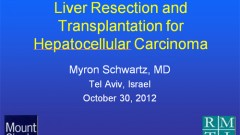 Liver Resection and Transplantation for Hepatocellular Carcinoma