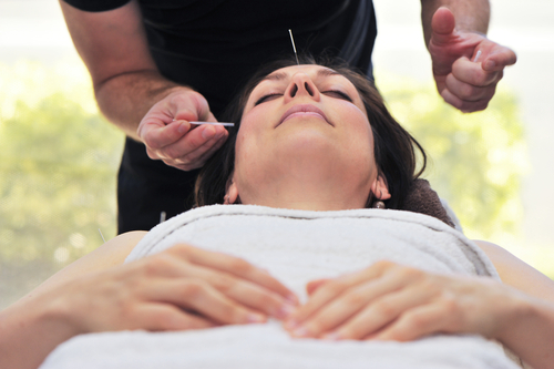 טיפול באמצעות דיקור (אילוסטרציה)