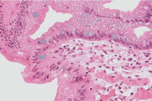 תסמונת בארט. תמונה היסטולוגיה של ושט על שם בארט. (מקור צילום: ויקיפדיה)