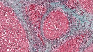צילום מיקרוסקופי של כבד עם שחמת הכבד (מקור צילום: ויקיפדיה)
