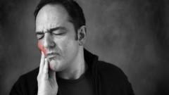 כאב שיניים (אילוסטרציה)