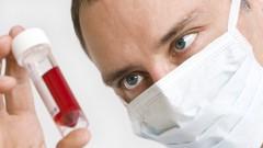 """הלשכה לאתיקה של הר""""י: רופא מחויב לטפל בכל חולה, לרבות חולי איידס (אילוסטרציה)"""