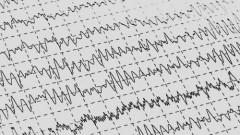 הרגל לא מבוסס בנוירולוגיה: אל תבצע בדיקת EEG לכאבי ראש (אילוסטרציה)