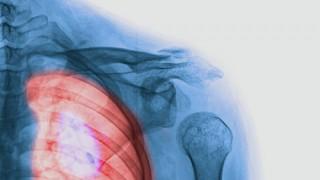 סרטן ריאות (אילוסטרציה)