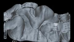 """תמונת CT של התאומים הסיאמיים (צילום: בי""""ח רמב""""ם)"""