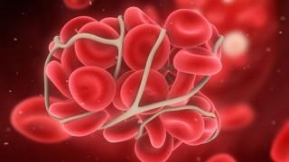 קריש דם (הדמיית אילוסטרציה)