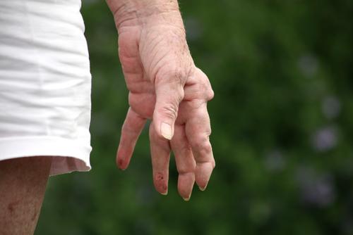 דלרת מפרקים (צילום: אילוסטרציה)