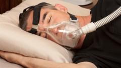 טיפול ב-Apnea (צילום: אילוסטרציה)