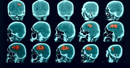 דימום מוחי (צילום: אילוסטרציה)