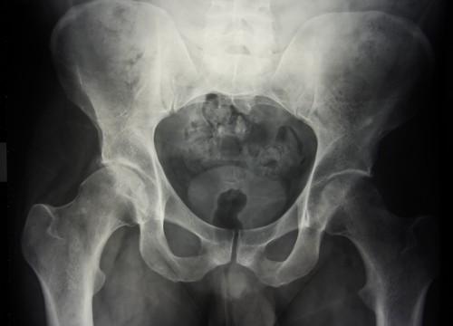צילום רנטגן של מפרקי הירך (צילום: אילוסטרציה)
