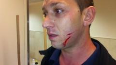 """מאבטח ברמב""""ם שהותקף במהלך ניסיון להגן על רופא מתקיפה (צילום: רמב""""ם)"""