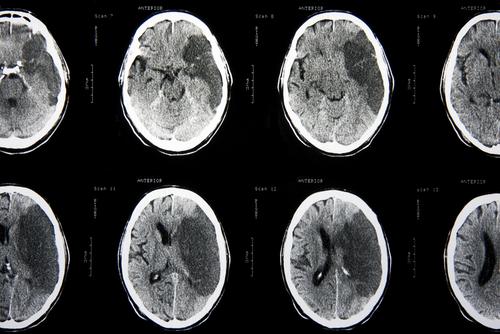 שבץ מוחי 1 (צילום: אילוסטרציה)