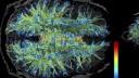 תמונת MRI של החומר הלבן במוח (מקור: ויקיפדיה)