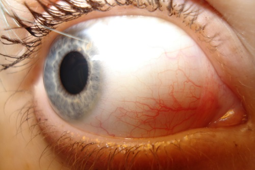 כלי דם בעין (צילום: ויקיפדיה)