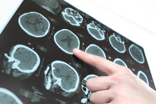 נוירולוגי, מומחה לפרקינסון (צילום: אילוסטרציה)