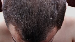 פסוריאזיס בקרקפת (צילום: אילוסטרציה)
