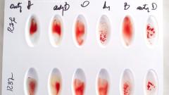 בדיקת סוג דם (צילום: אילוסטרציה)