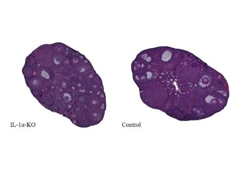 """הבדלים בין השחלות, מתוך המחקר (מקור: """"שיבא"""")"""