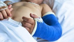 ילד לאחר ניתוח שבר ביד (צילום: אילוסטרציה)