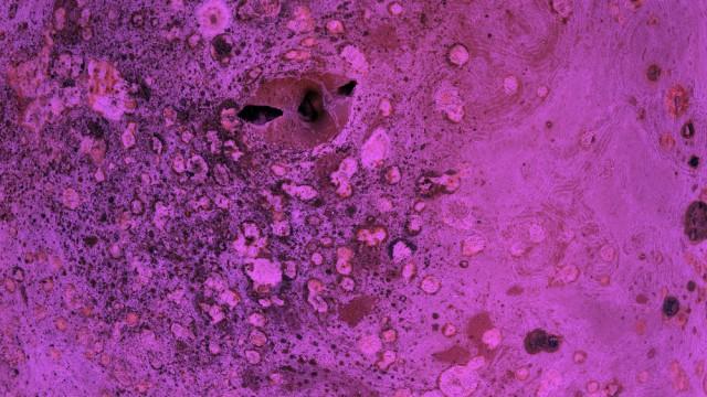פטרייה, עובש (צילום: אילוסטרציה)