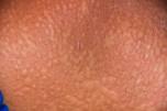 אורטיקריה, עור (צילום: אילוסטרציה)