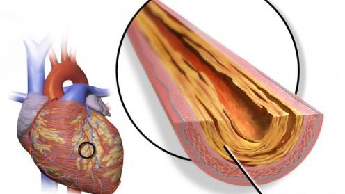 בעיות לב (מקור: ויקיפדיה)
