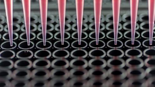 בדיקה גנטית (צילום: אילוסטרציה)